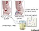 Uric acid test