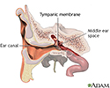 Ear tube insertion - series - Normal anatomy