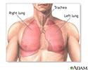 Pulmonary lobectomy  - series