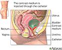 Voiding cystourethrogram