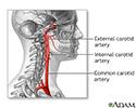 Carotid artery surgery - series