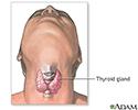 Thyroidectomy - Series