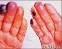Cryoglobulinemia of the fingers