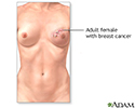 Breast reconstruction - series - Indication, part 1