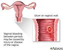 Bleeding between periods