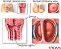 Developmental disorders of the vagina and vulva