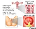 Vaginal discharge