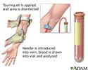 PSA blood test