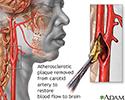 Endarterectomy