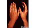 Erythema multiforme, circular lesions - hands
