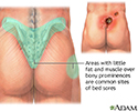 Areas where bedsores occur
