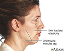Facelift - series - Indications
