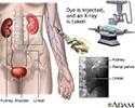 Intravenous pyelogram (IVP)