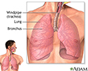 Lower respiratory tract