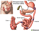 Biliopancreatic diversion (BPD)