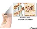 Vertebroplasty - series
