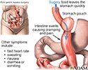 Dumping syndrome