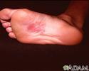 Dermatitis, nickel on the sole
