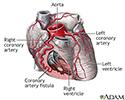Coronary artery fistula