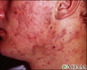Acne - cystic on the face