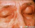 Dermatomyositis - heliotrope eyelids