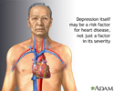 Depression and heart disease