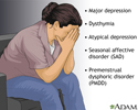 Forms of depression