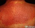 Lichen simplex chronicus on the back