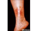 Dermatitis - stasis on the leg