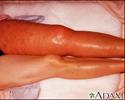 Deep venous thrombosis - iliofemoral