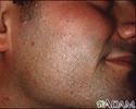 Molluscum contagiosum on the face