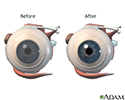 Before and after corneal surgery