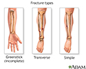 Fracture types (2)