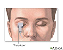 Head and eye echoencephalogram
