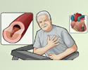 Coronary artery disease (CAD) overview