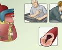Angina pectoris treatment