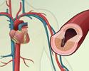Cardiovascular disease - description